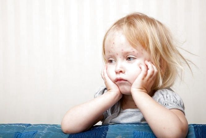 У Кам'янці захворювання на кір не збільшується. Лікарі очікують нову партію вакцин